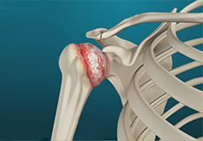 Shoulder Arthrits